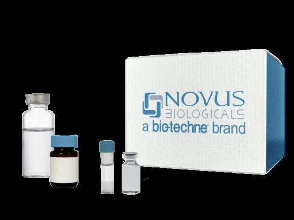Novus Biologicals Parathyroid hormone 2 Overexpression Lysate Native SKU: NBL1-14946 package