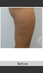 VanquishME with Cellutone Treatment Physician - Prejuvenation before & after