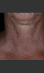 Alastin Skincare Restorative Neck Complex with TriHex Technology® Physician - Prejuvenation before & after
