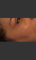 Dr. Palmer Vein Removal 01 Physician- Prejuvenation Before & After
