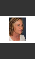 Chin Contouring & Sun Damage Treatment Physician- Prejuvenation Before & After