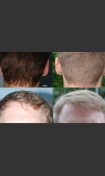 Neograft Hair Transplant Physician- Prejuvenation before & after