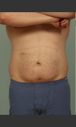 Liposuction Physician- Prejuvenation before & after