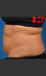 SculpSure Abdomen Physician - Prejuvenation before & after