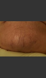Cutera Laser Treatment Physician - Prejuvenation before & after