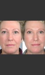 Two women with Laser Eyelid Blepharoplasty Physician - Prejuvenation before & after