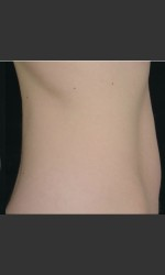 before_after/sculpsure-abdomen/18438 Physician- Prejuvenation Before & After