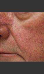 Dr. Langdon IPL Treatment  Physician- Prejuvenation before & after