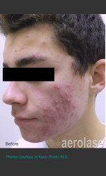 NeoClear by Aerolase Acne Treatment Physician - Prejuvenation before & after