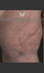 Spider Vein Treatment Physician - Prejuvenation Before & After