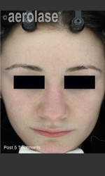 NeoClear by Aerolase Acne Treatment Physician- Prejuvenation Before & After