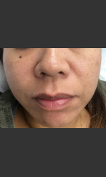 IPL Photofacial  Physician - Prejuvenation Before & After