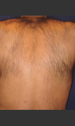 Laser Hair Removal Physician - Prejuvenation before & after