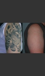 Tattoo Removal Physician - Prejuvenation before & after