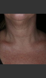 before_after/alastin-skincare-restorative-neck-complex-with-trihex-technology®/17042 Physician- Prejuvenation Before & After