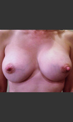 Dr. Palmer Breast Augmentation 01  Physician - Prejuvenation Before & After