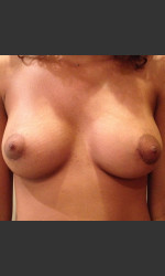 Dr. Palmer Breast Augmentation 02 Physician- Prejuvenation Before & After