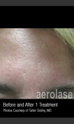 Treatment of Pores and Skin Texture #338 Physician - Prejuvenation before & after