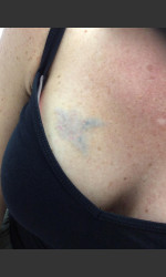 Laser Tattoo Removal  Physician- Prejuvenation Before & After