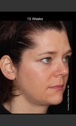Hyperpigmentation - Professional Peel Physician- Prejuvenation Before & After