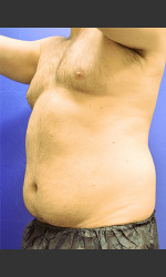Liposuction Case #1 Physician - Prejuvenation before & after