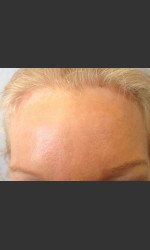 Before & After Botox Physician - Prejuvenation Before & After