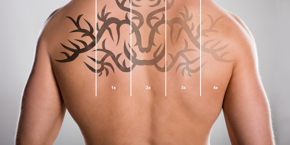 What is the Cost of Laser Tattoo Removal? - ZALEA Article Banner