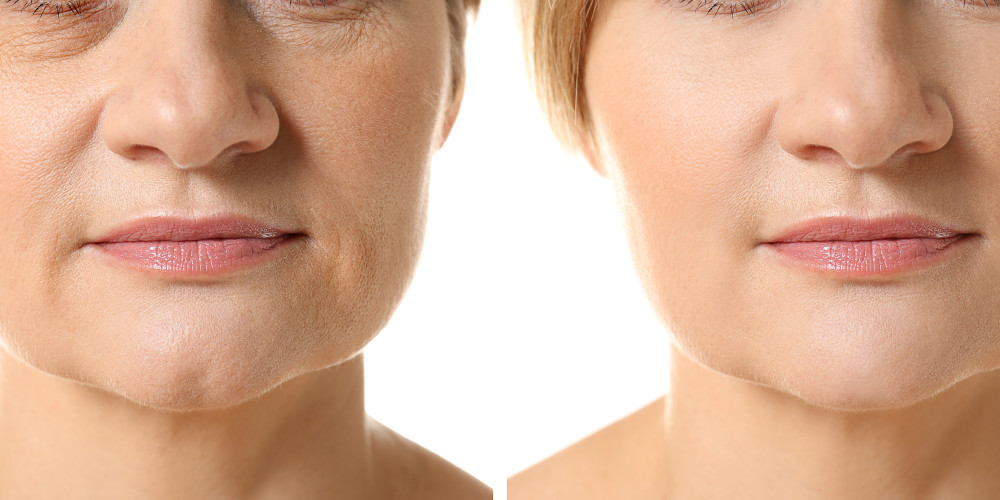 What is the Cost of Wrinkle Reduction Treatments? - Prejuvenation Article Banner