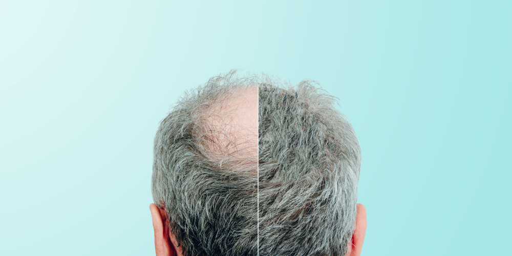 The Price of Hair Restoration - ZALEA Article Banner
