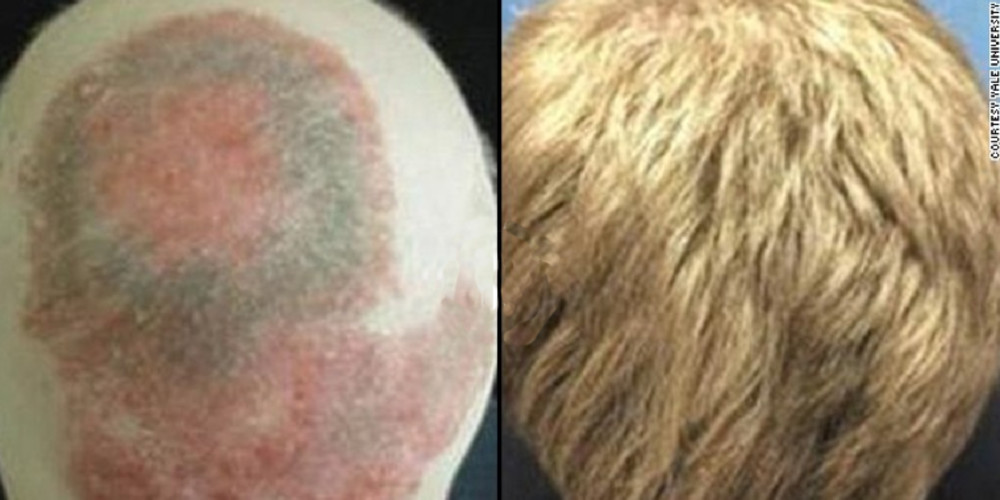 Drug gives bald man full head of hair   - ZALEA Article Banner