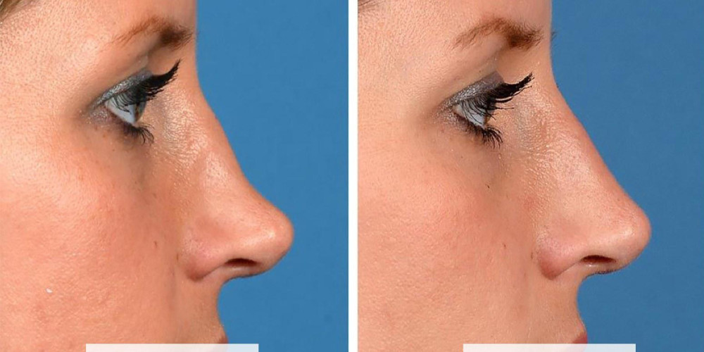 What Is Non-Surgical Rhinoplasty? Risks and Results of Nose Fillers - ZALEA Article Banner
