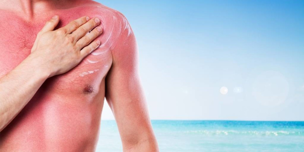 How to Treat Sunburn - ZALEA Article Banner