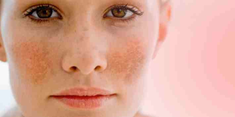 Skin Conditions Respond to Energy-Based Therapies - ZALEA Article Banner