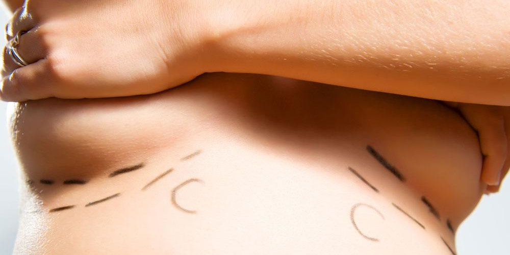 The four S's When Considering Breast Augmentation - ZALEA Article Banner