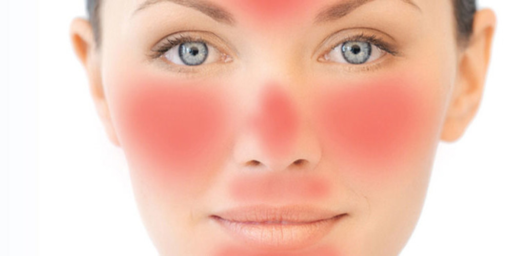 A New Tool To Fight Facial Redness - ZALEA Article Banner