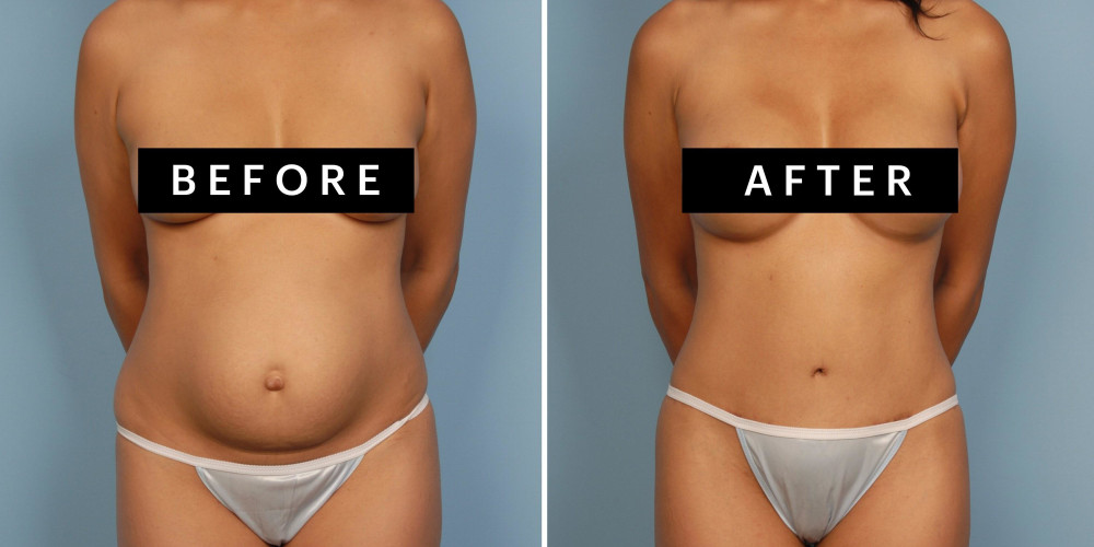 Mommy Makeover: Everything You Need to Know About the Plastic Surgery Trend - ZALEA Article Banner