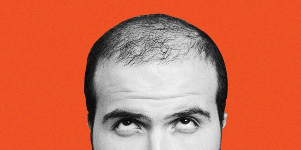 Is There A Cure For Baldness? Science Says It's Right Around The Corner? - ZALEA Article Banner