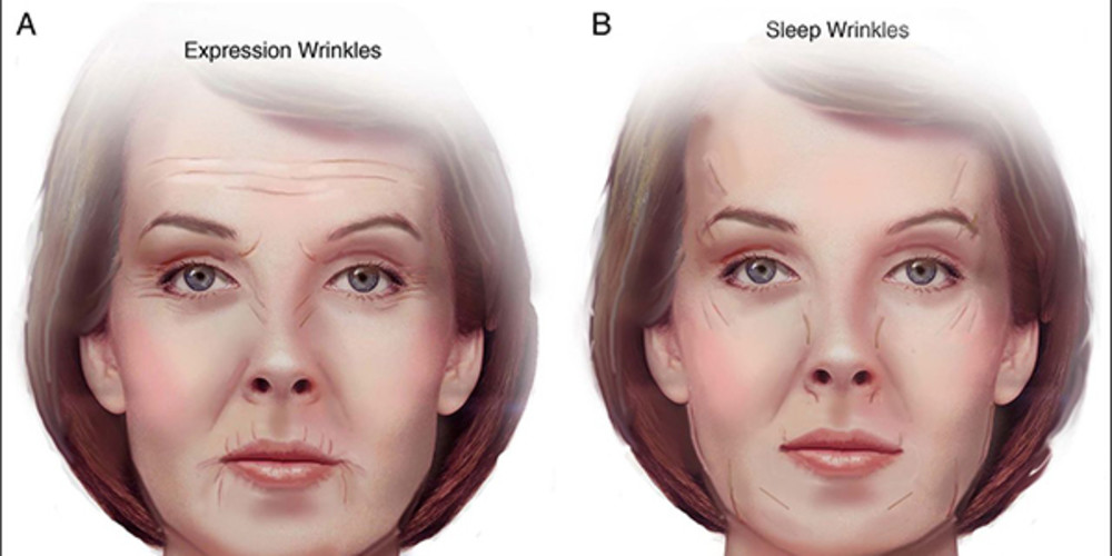 Sleep-Associated Wrinkles Are A Thing - ZALEA Article Banner