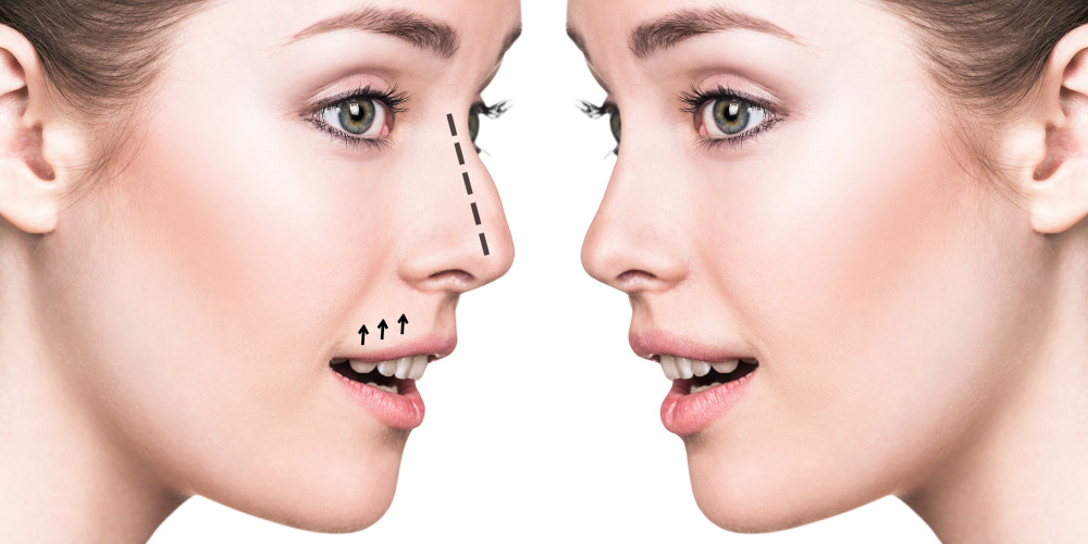 Just The Tip For Rhinoplasty - ZALEA Article Banner