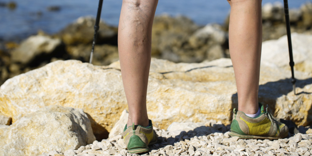 Varicose Veins: More Than a Cosmetic Concern - ZALEA Article Banner