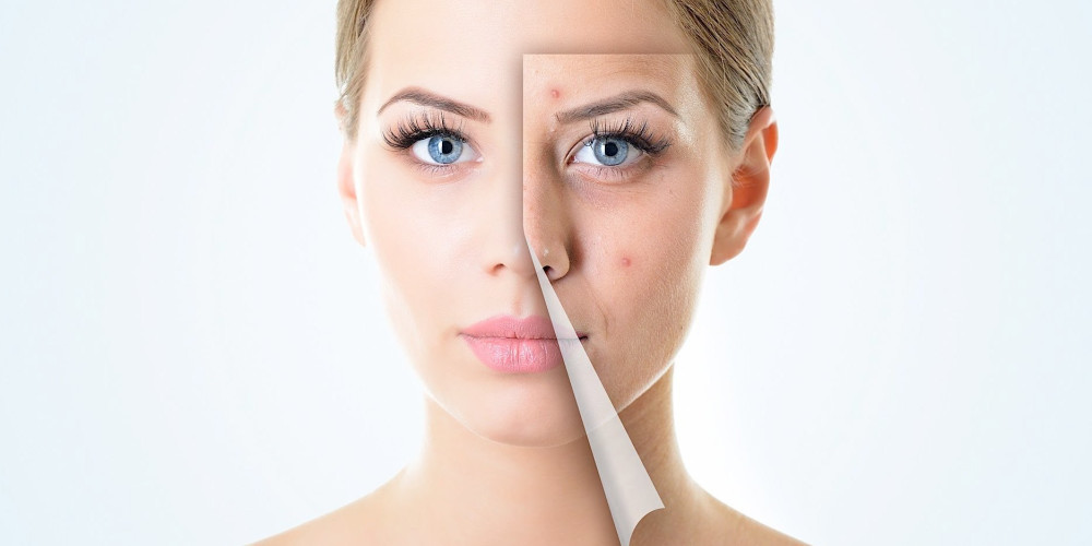 The New Anti-Acne Pill In The Works - ZALEA Article Banner