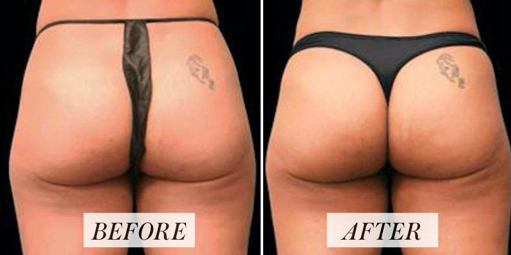 What Is EMSculpt? What to Know About the Body-Contouring Treatment - ZALEA Article Banner