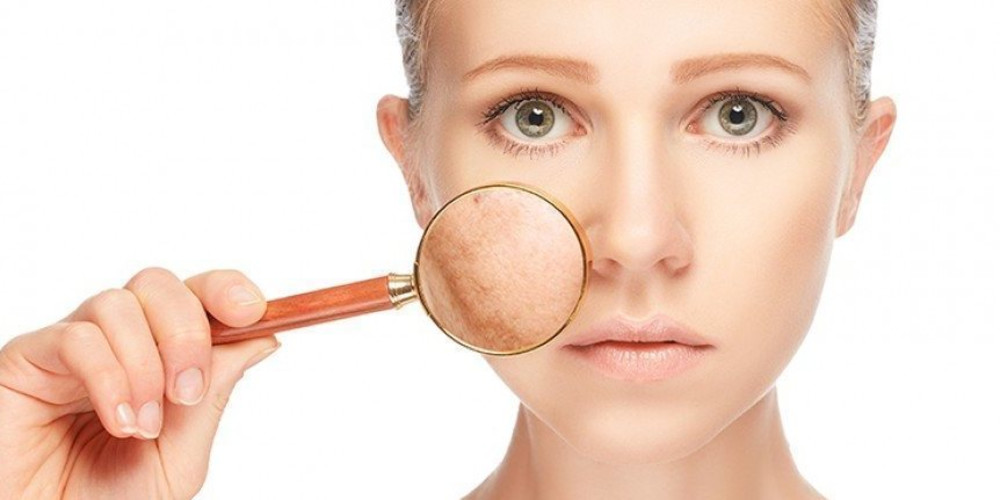 Summer Basics for Melasma - ZALEA Article Banner