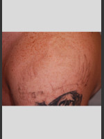 After Photo PicoWay Tattoo Removal on Shoulder  - Prejuvenation Before & After