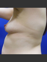Before Photo Breast Augmentation Case #1 - ZALEA Before & After