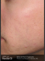 After Photo Revlite SI Treatment of Facial  Acne Scarring - ZALEA Before & After