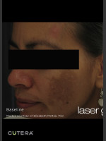Before Photo Melasma Before & After Photo after Laser Genesis - Prejuvenation Before & After