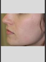 After Photo Sublative Rejuvenation Treatment - ZALEA Before & After