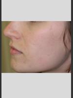 After Photo Sublative Rejuvenation Treatment - Prejuvenation Before & After