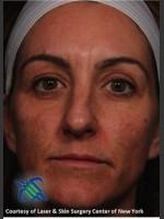Before Photo Full Face Skin Rejuvenation - ZALEA Before & After